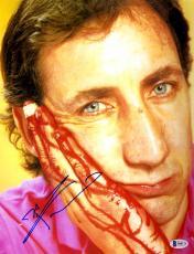 "Pete Townshend Autographed 11"" x 14"" Bloody Finger Photograph - Beckett COA"